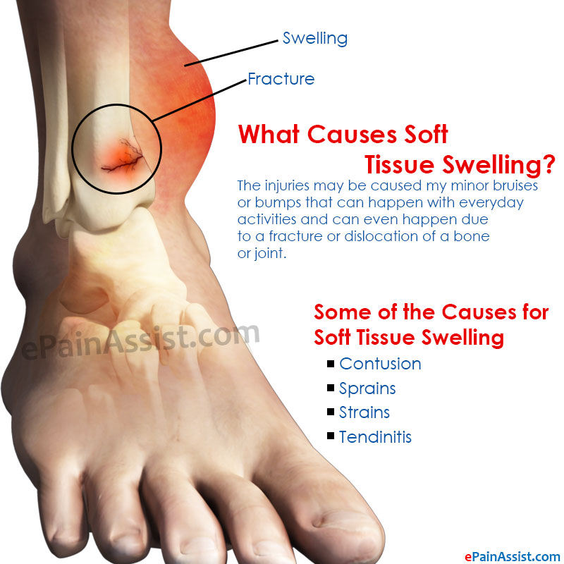 What Can Cause Soft Tissue Swelling