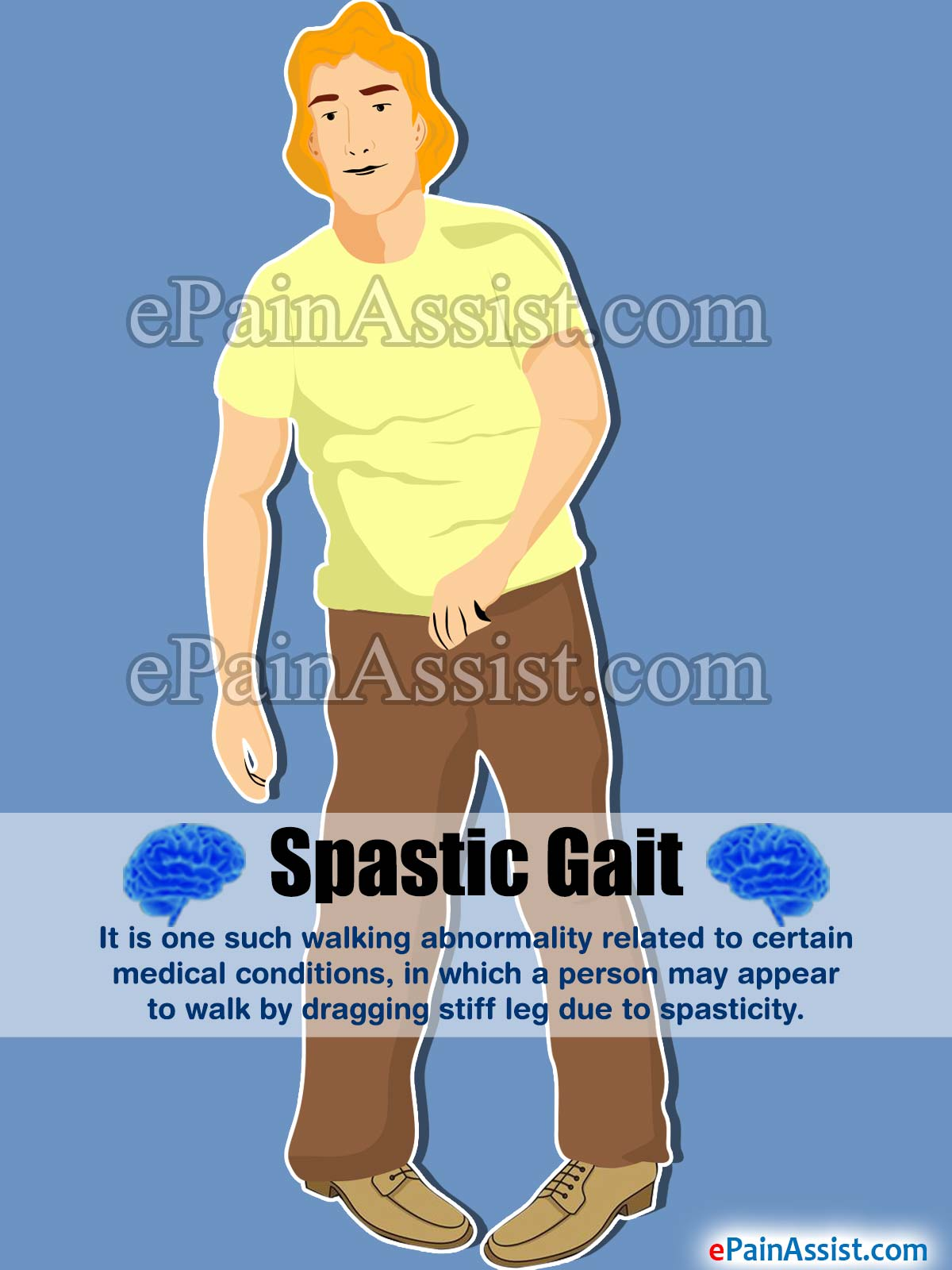spastic gait|causes|treatment|rehabilitation, Skeleton