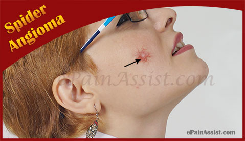spider angioma|causes|symptoms|treatment|prevention|diagnosis, Skeleton