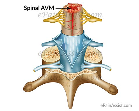 Spinal Arteriovenous Malformation