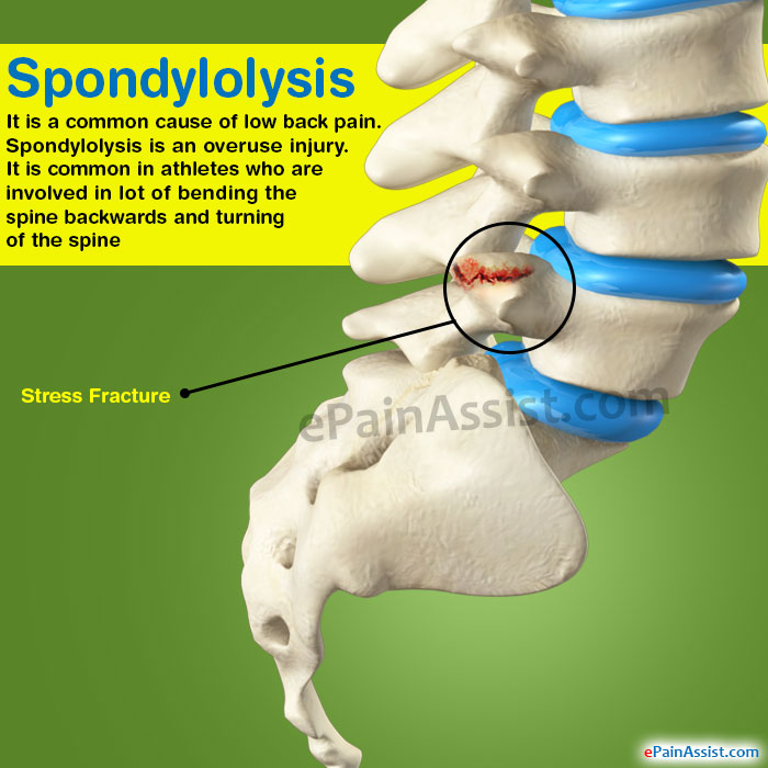spondylolysis without listhesis Object lumbar spondylolysis occurs in approximately direct repair of lumbar spondylolysis with a symptomatic spondylolysis without listhesis.