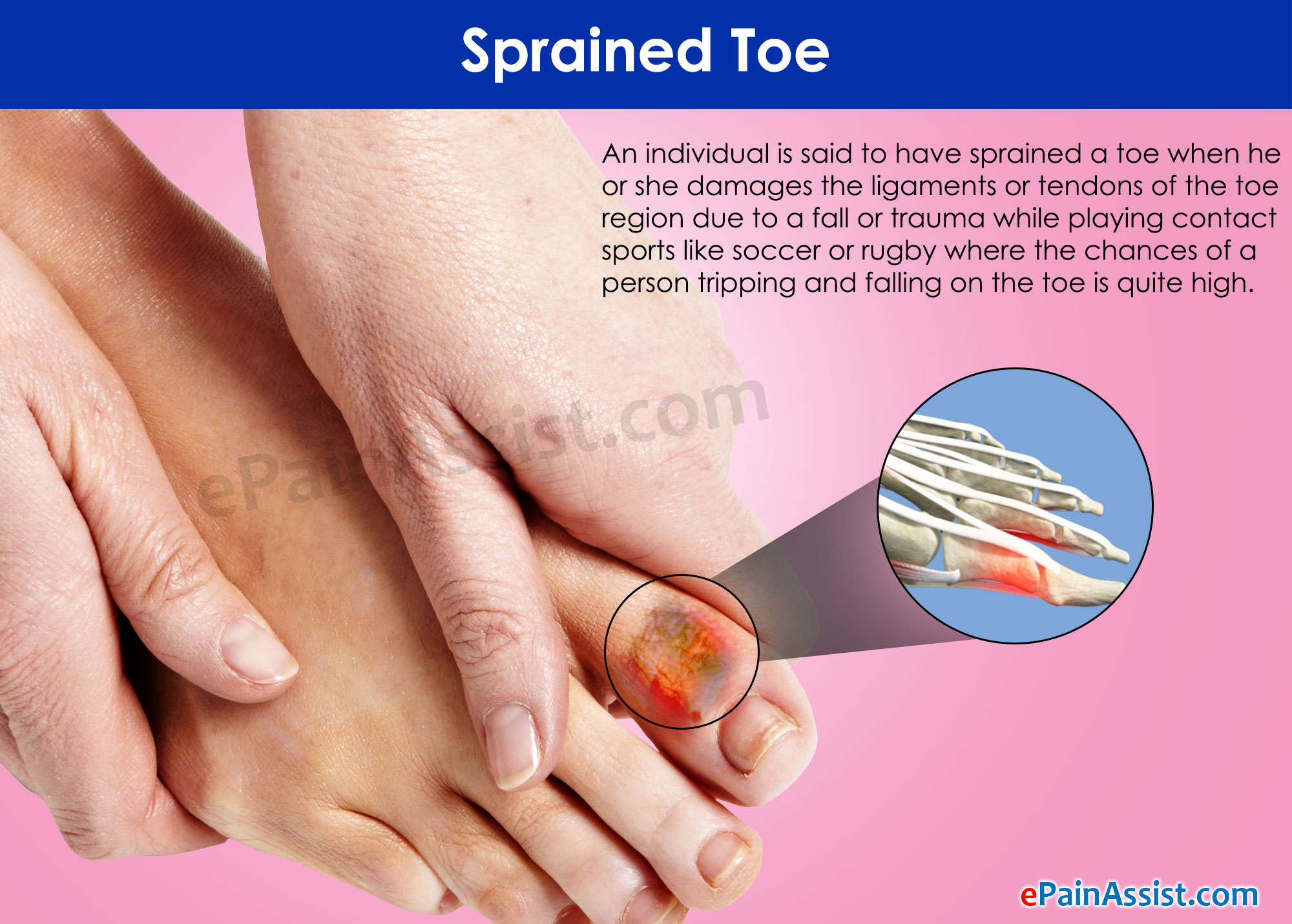 Sprained Toe|Causes|Symptoms|Treatment|Diagnosis