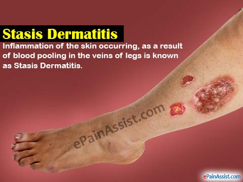 natural cure for stasis dermatitis