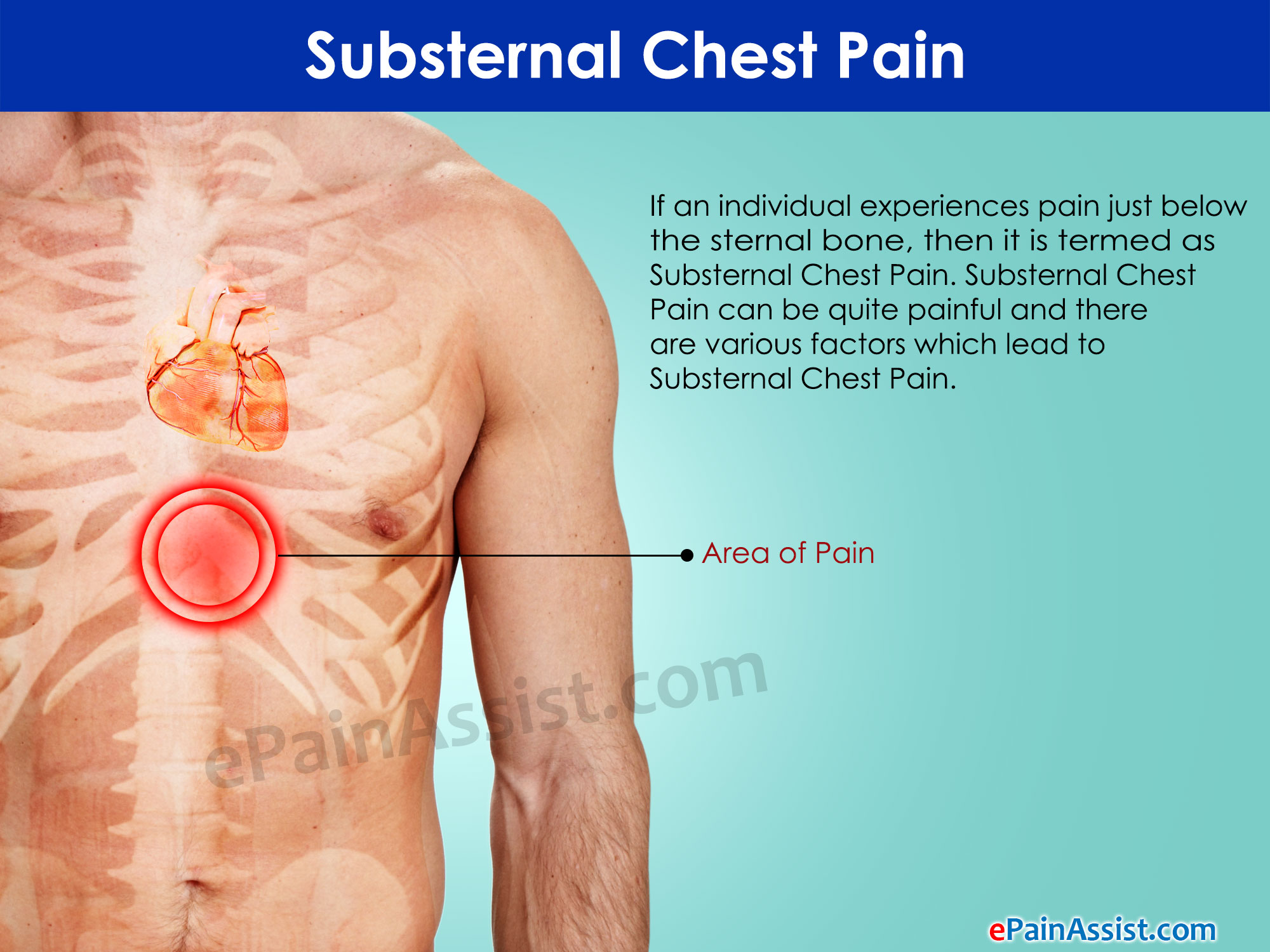 What Are Some Of The Ociated Symptoms Along With Substernal Chest Pain