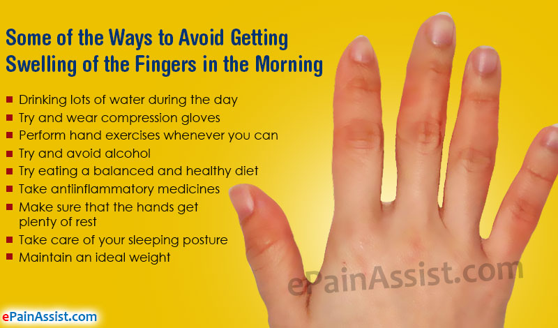 Swollen Fingers in the Morning and How Can it be Treated