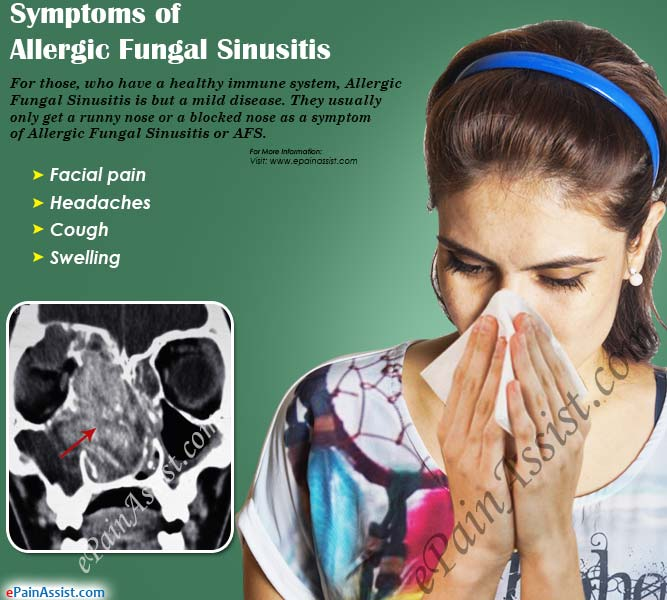 Symptoms of Allergic Fungal Sinusitis
