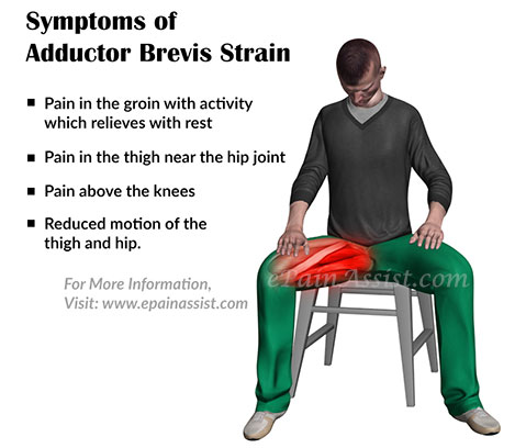 Symptoms of Adductor Brevis Strain