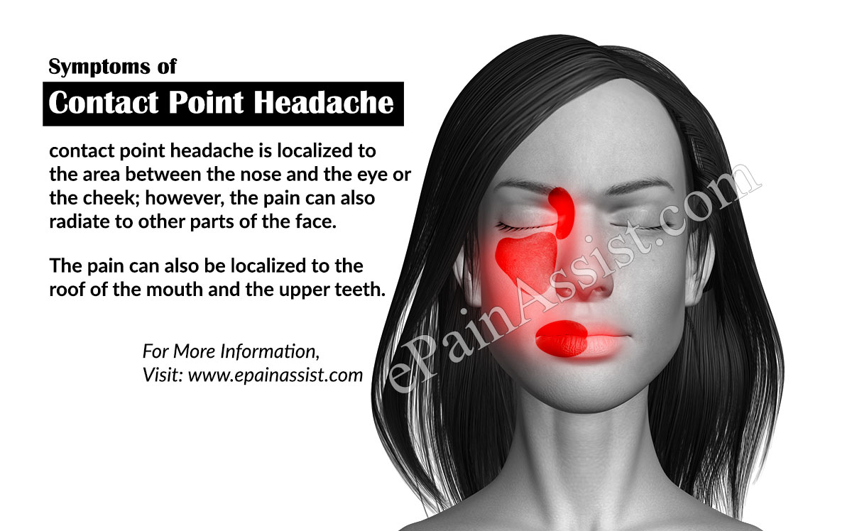 Symptoms of Contact Point Headache