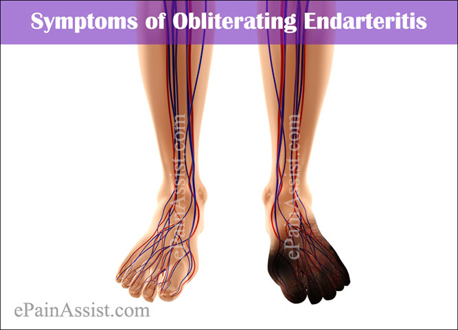 Symptoms of Obliterating Endarteritis