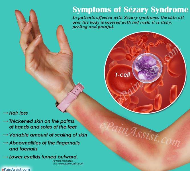 Symptoms of Sezary Syndrome