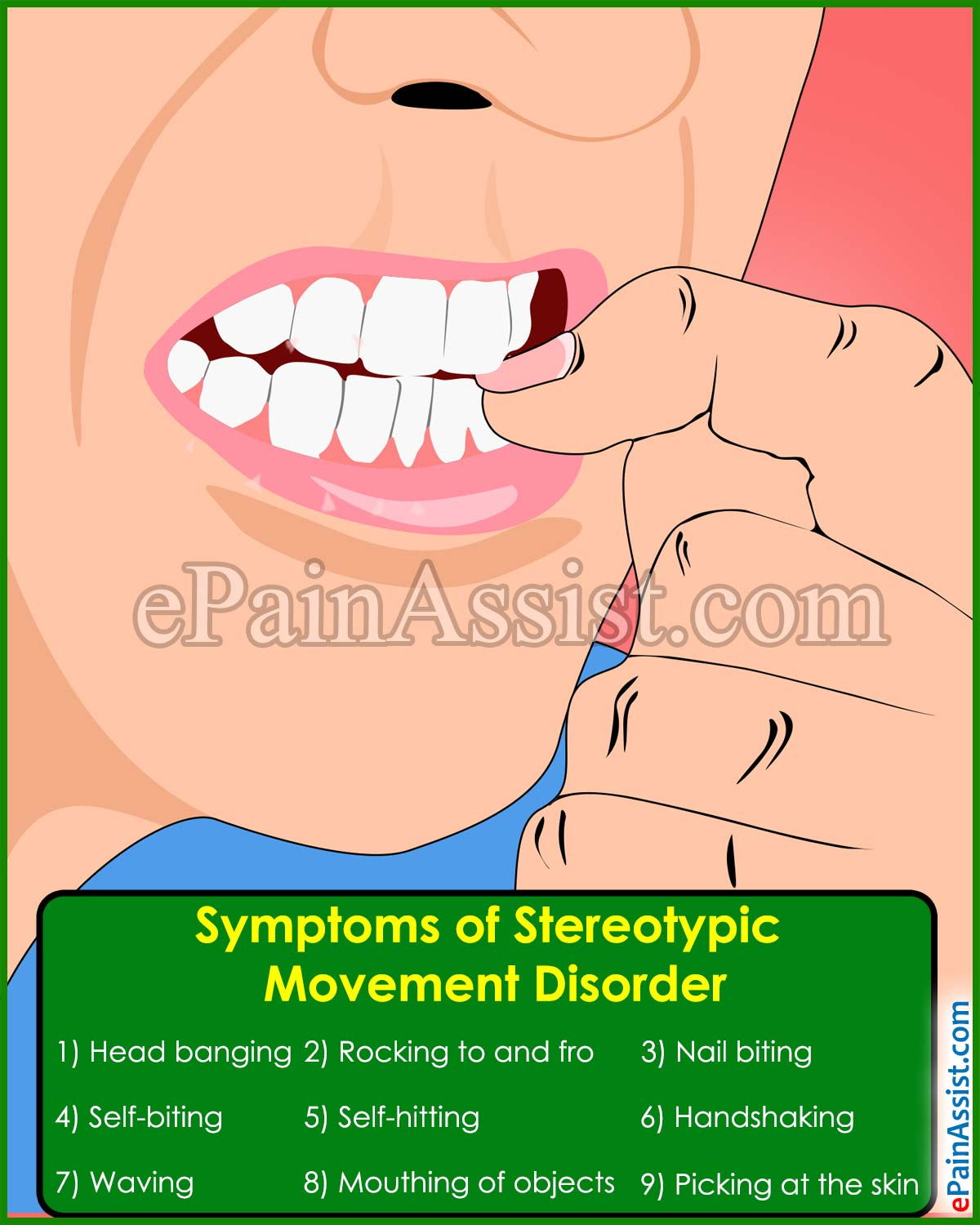 Symptoms of Stereotypic Movement Disorder
