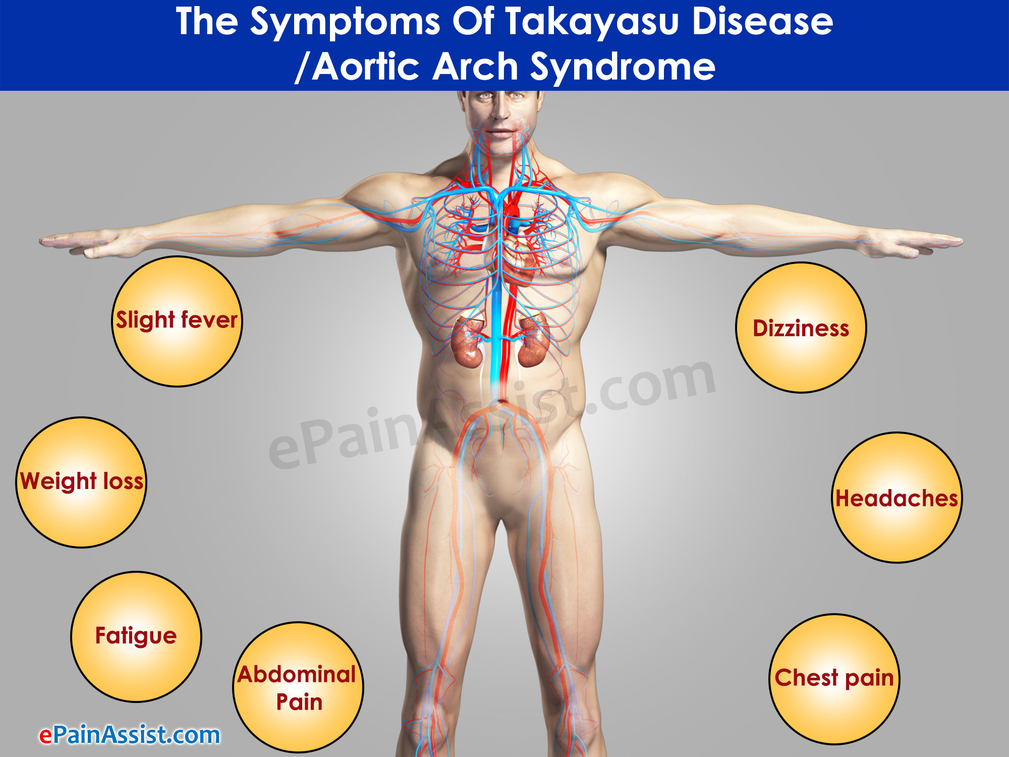 Symptoms Of Takayasu Disease/Aortic Arch Syndrome