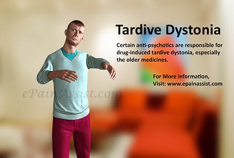 What are treatments for dystonia?