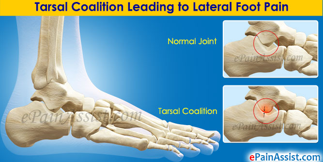 Tarsal Coalition Leading to Lateral Foot Pain