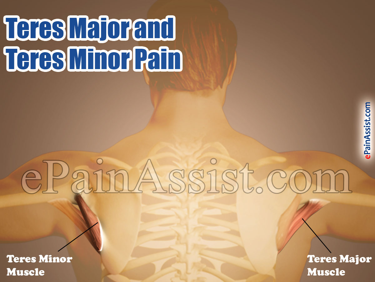 Teres Major and Teres Minor Pain|Causes|Symptoms|Treatment|Exercises