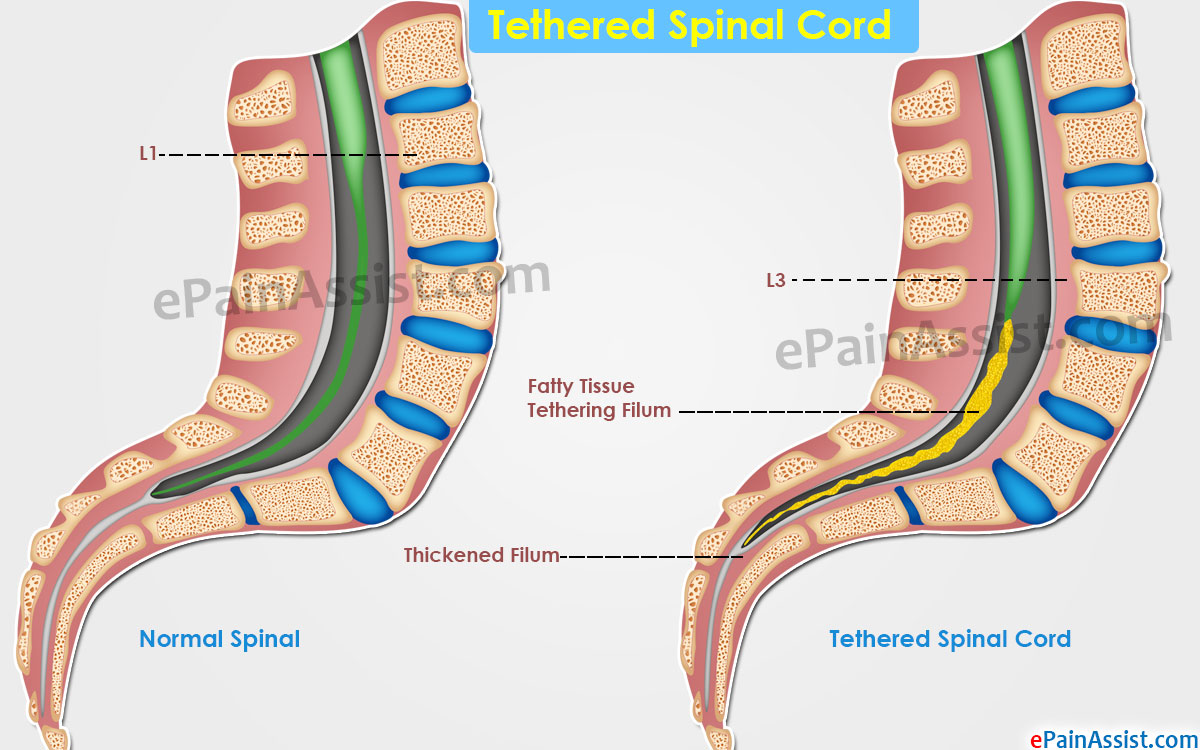 Image result for Tethered spinal cord syndrome
