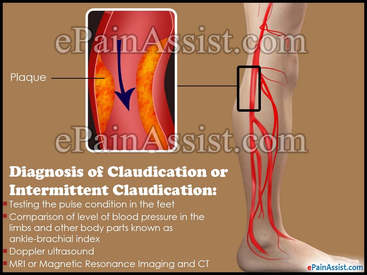 Diagnosis Claudication or Intermittent Claudication