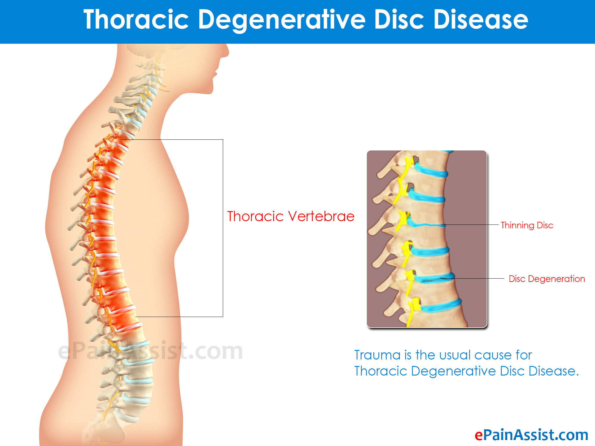Types Of Degenerative Disc Disease Its Symptoms Treatment