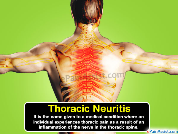 Thoracic Neuritis