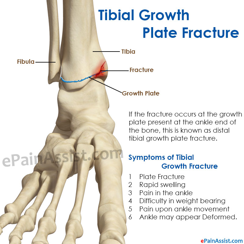 symptoms of tibial Growth plate fracture
