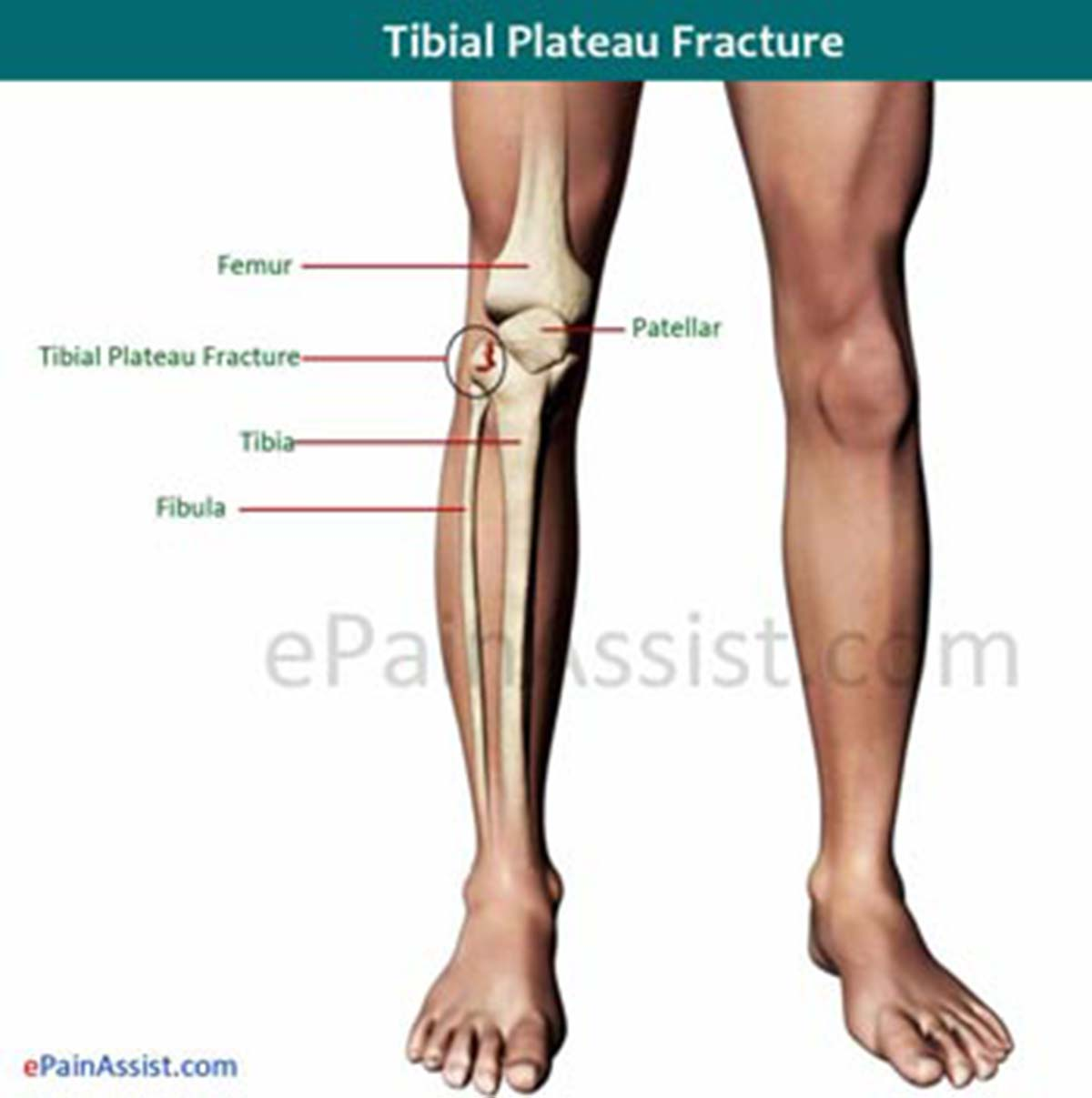 Tibial Plateau Fracture