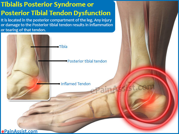 Tibialis Posterior Syndrome or Posterior Tibial Tendon Dysfunction