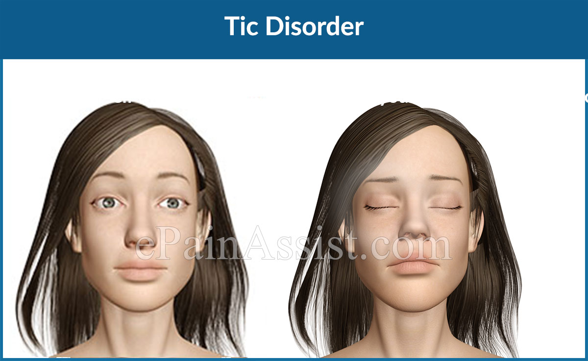 Facial Twitches Underlying Disorder - Adult Archive-4195