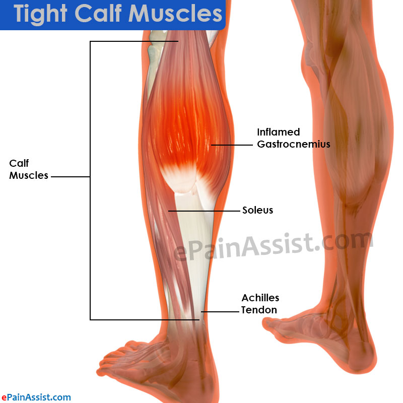 Tight Calf Muscles|Causes, Treatment- Stretching Exercises ...