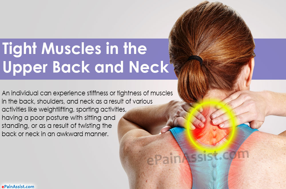Tight Muscles in the Upper Back and Neck: Treatment, Exercise
