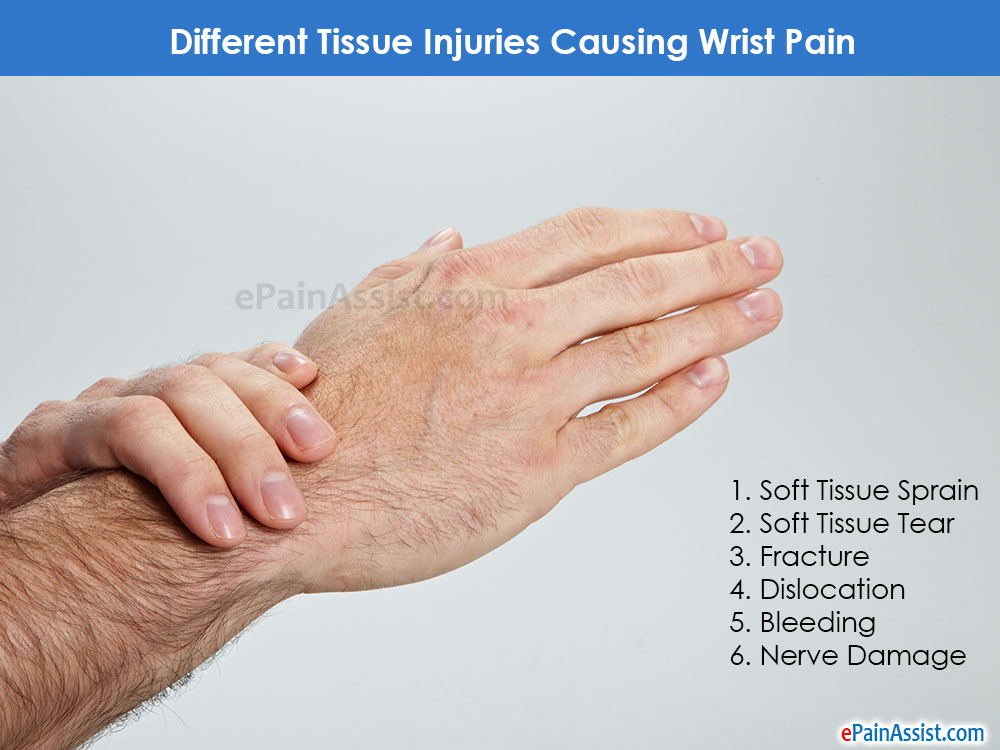 Tissue Injuries Causing Wrist Pain
