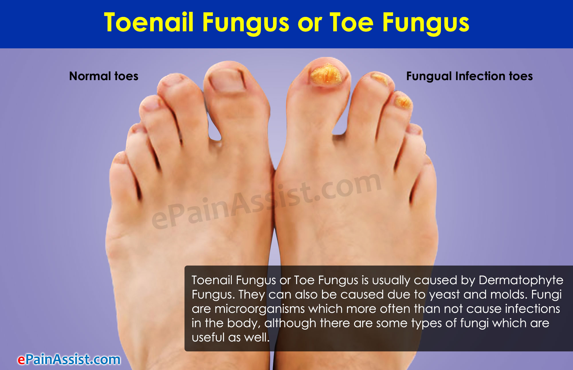Toenail Fungus|Risk Factors|Treatment|Home Remedies|Complications