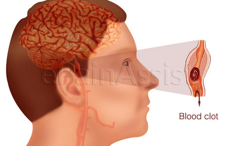 What is transient ischemic attack?