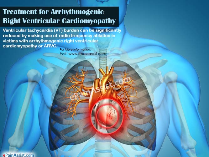 Treatment for Arrhythmogenic Right Ventricular Cardiomyopathy or ARVC
