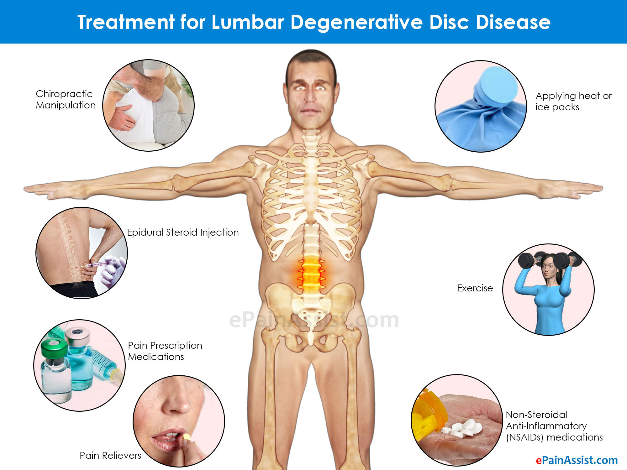 Treatment for Lumbar Degenerative Disc Disease