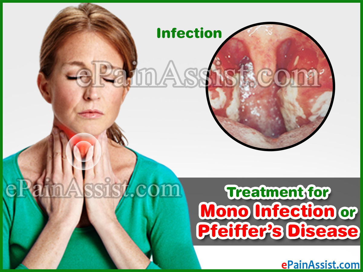Treatment for Mono Infection or Pfeiffer's Disease