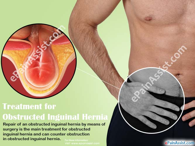 Treatment for Obstructed Inguinal Hernia