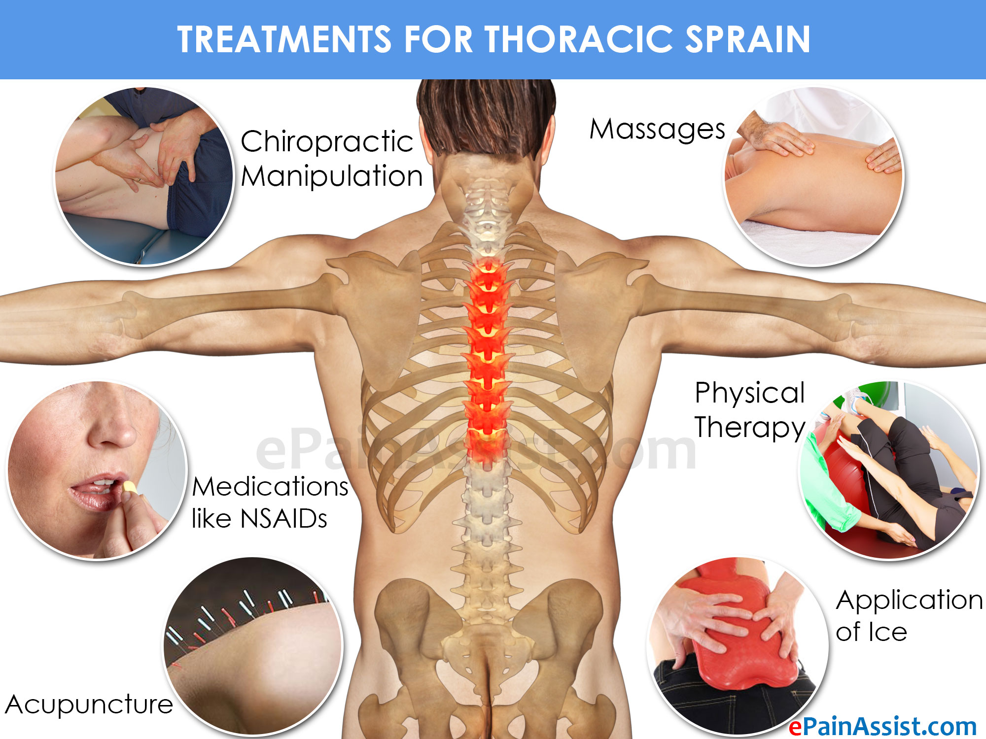 Thoracic Sprain Treatment, Exercise, Prevention, Symptoms. Set Parental Controls On Iphone. Water Damage Restoration Cincinnati. Harp Refinance Rates Today Social Work Resume. Nutrition Degree Requirements. Software Engineering Online Degree. Investment Property Mortgage Lenders. Locksmith Orange County Ca No Cost Home Loans. Computer Spy Software Reviews