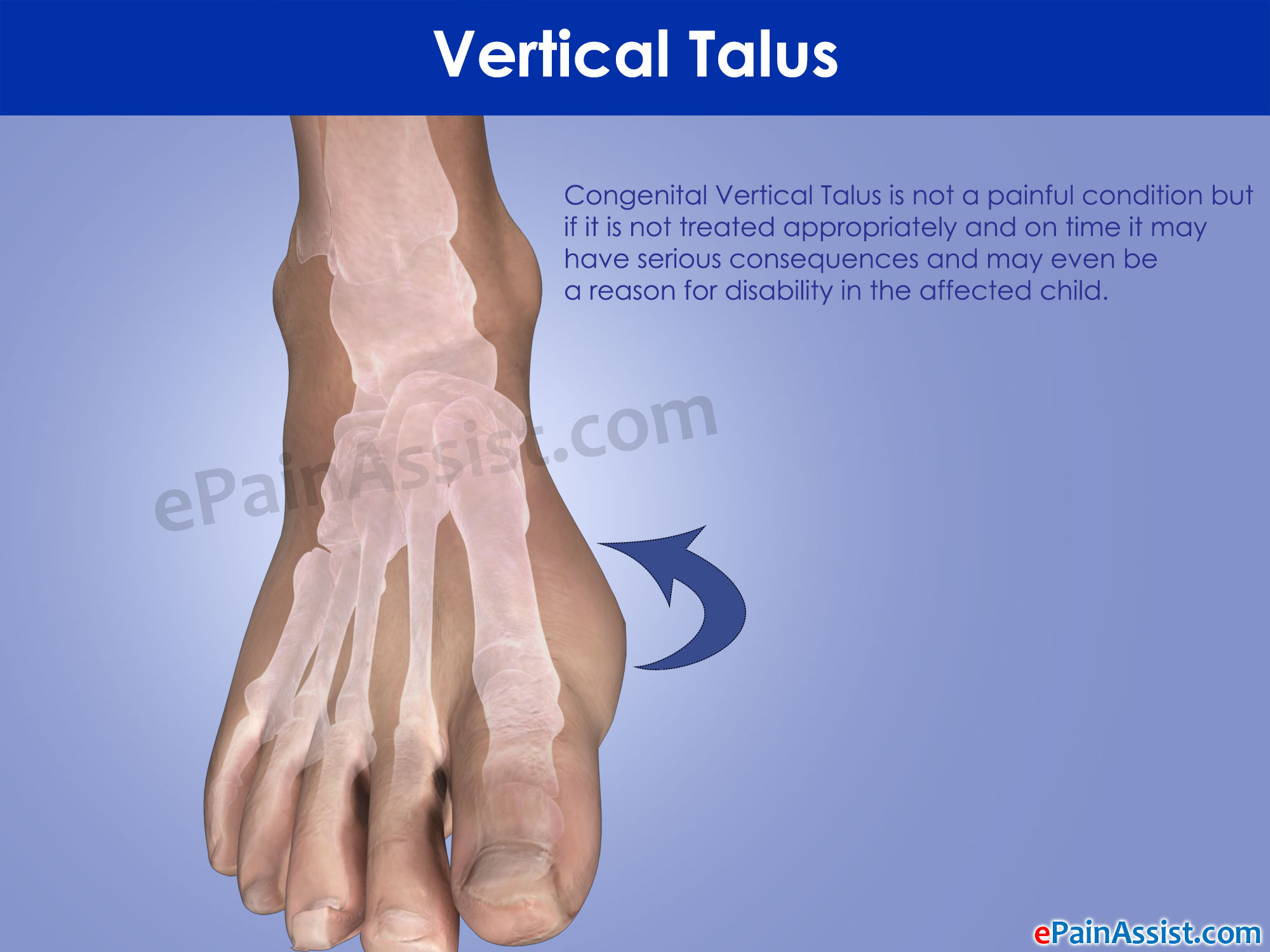 Treatment adults clubfoot