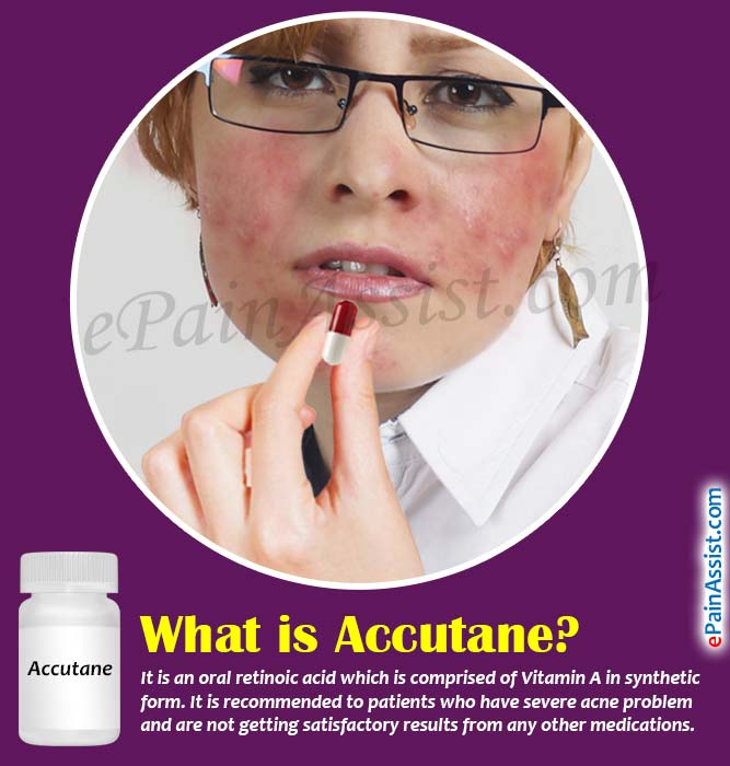 how does accutane work chemistry