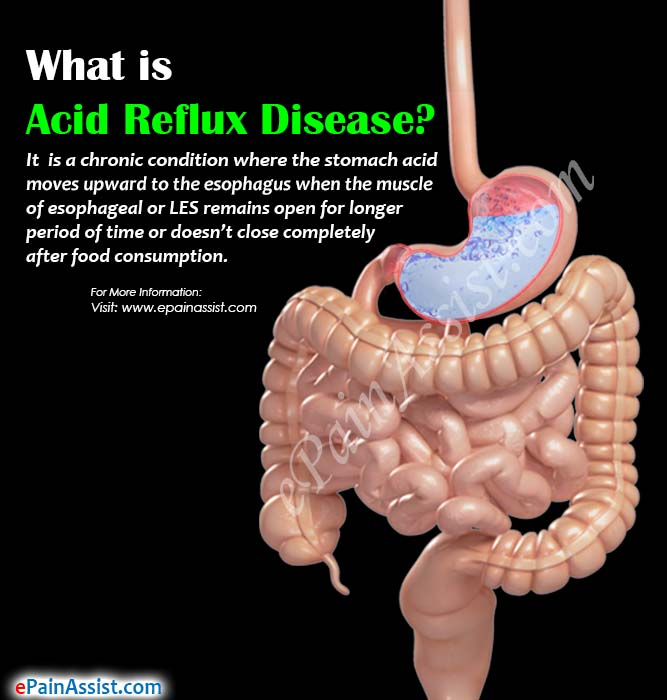 What is Acid Reflux Disease