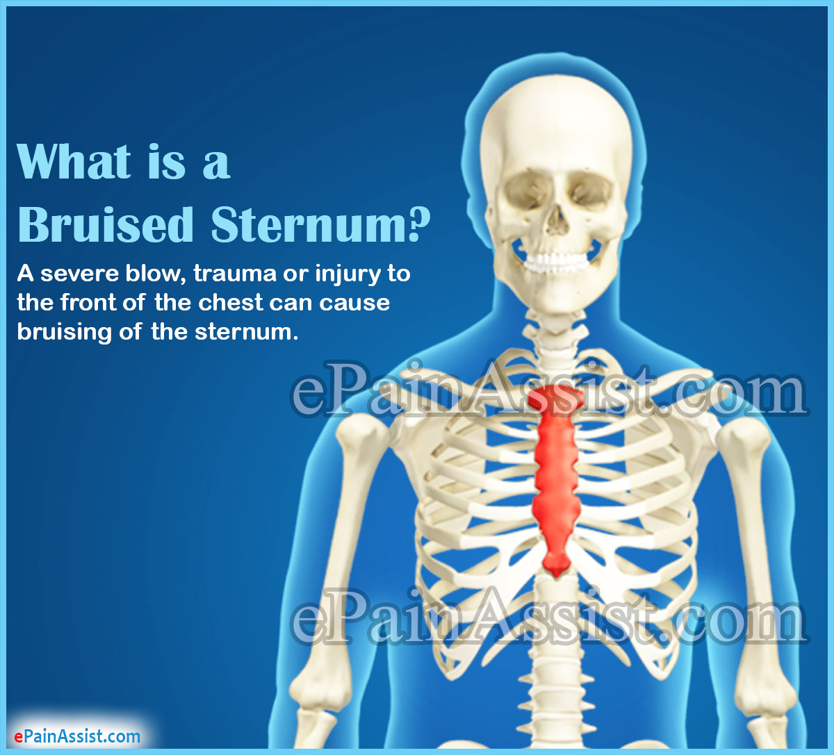 What is a Bruised Sternum