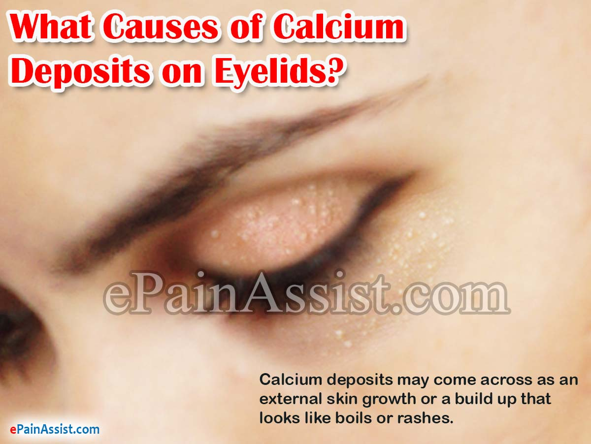 What Causes of Calcium Deposits on Eyelids