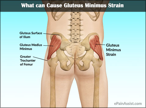 What Can Cause Gluteus Minimus Strain?