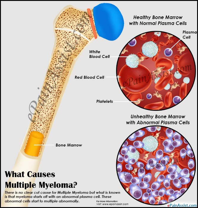 What Causes Multiple Myeloma