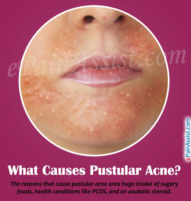 What Causes Pustular Acne