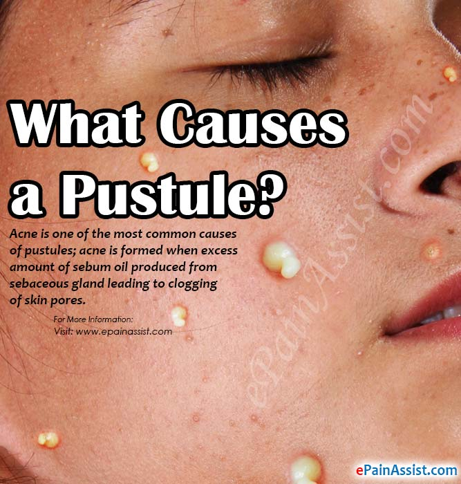 What Causes a Pustule