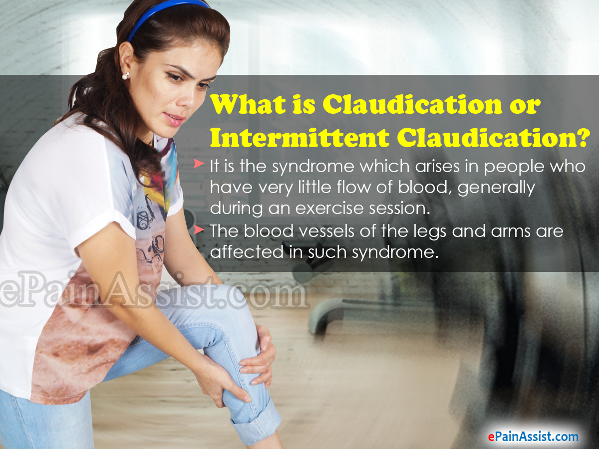 What is Claudication or Intermittent Claudication