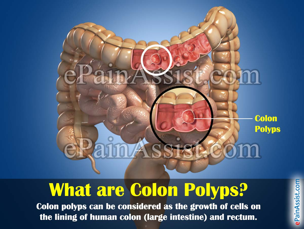 What are Colon Polyps