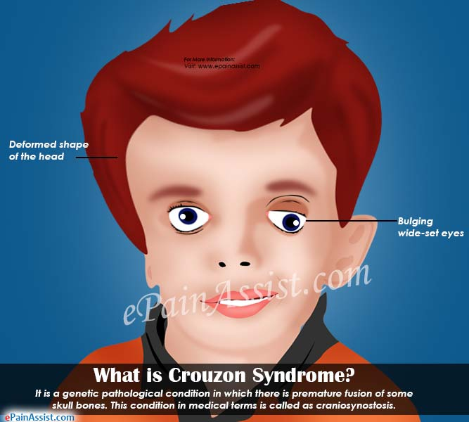 What is Crouzon Syndrome
