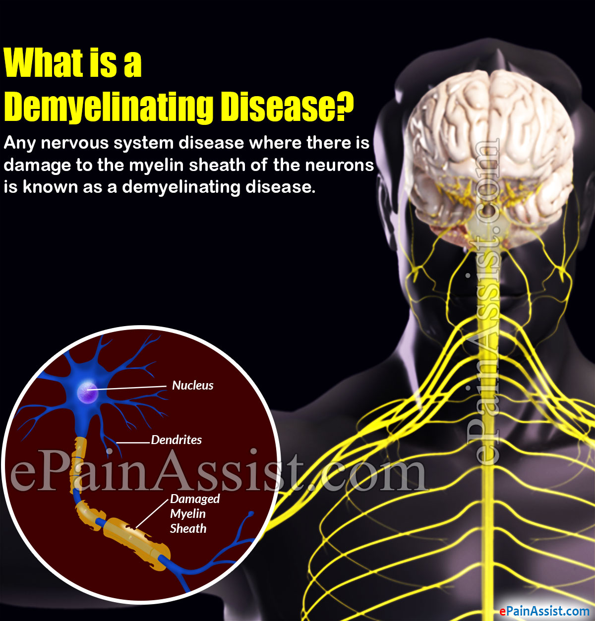 What is a Demyelinating Disease
